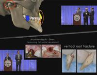 第98回アメリカ歯周病学会年次総会<br>インターディシプリナリー・セラピーによる<br>高度な審美的かつ機能的な補綴治療<br>(全2枚セット)