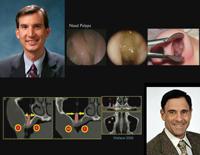 第98回アメリカ歯周病学会年次総会<br>上顎サイナス (上顎洞) を理解する<br>(全2枚セット)