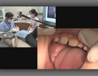 鶴見大学先制医療研究センター 医療技術トレーニングシリーズ<br>これで解る!小児の過剰歯への対応<br>~正中埋伏過剰歯の臨床的対応~(全1枚)
