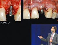 アメリカ歯周病学会スプリング・カンファレンス<br>インプラント合併症-生物力学と審美に関する考慮事項<br>~補綴専門医の見解~<br>(全2枚)
