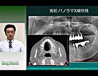 口腔外科医と学ぶ「フィクスチャー埋入術」<br>~どうする?ソケットリフト法による上顎インプラント治療~(全1枚)<br>
