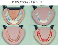 鶴見大学先制医療研究センター 医療技術トレーニングシリーズ<br>高精度全部床義歯の製作<br>~ ピエゾグラフィーとFBIテクニック ~(全1枚)