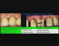第99回アメリカ歯周病学会年次総会<br>「累積的防御療法(CIST)によるインプラント周囲病変の予防と治療」<br>(全1枚)