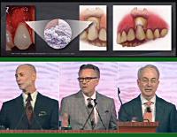 第99回アメリカ歯周病学会年次総会<br>軟組織移植術を成功に導くために ― 材料とテクニック<br>(全3枚セット)
