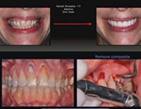 第99回アメリカ歯周病学会年次総会<br>様々なテクニックによる軟組織グラフト<br>(全1枚)