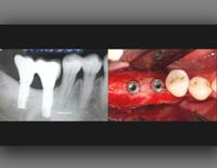 第100回アメリカ歯周病学会年次総会<br>垂直・水平的骨造成術における新しい展望<br>(全2枚セット・分売不可)