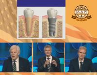 第100回アメリカ歯周病学会年次総会<br>インプラント周囲でのボーンロスの理解と管理<br>(全1巻)