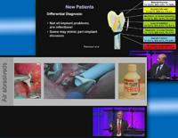 第97回アメリカ歯周病学会年次総会<br />インプラント周囲炎のマネージメント<br />(全2枚セット)