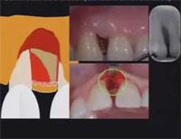 第97回アメリカ歯周病学会年次総会<br>低侵襲の手術テクニック<br>(全2枚セット・分売不可)