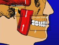 咬合、顎関節症、そして口腔顔面痛<br>~顎関節の位置に関する論争~<br>(全2枚・分売不可)