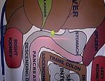 VM53超音波を用いた胃と膵臓の検査